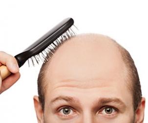 نکاتی برای جلوگیری از ریزش مو