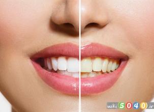 عوامل موثر بر تغییر رنگ دندان ها