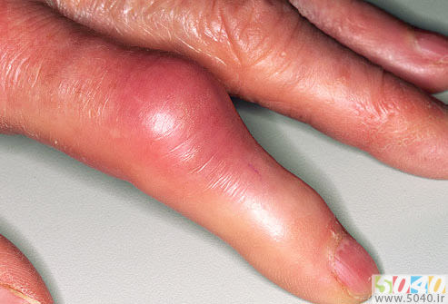 فروشگاه اینترنتی 5040 - مطالب مفید و کاربردی - بهداشت و سلامت - بیماری نقرس - نقرس انگشت دست