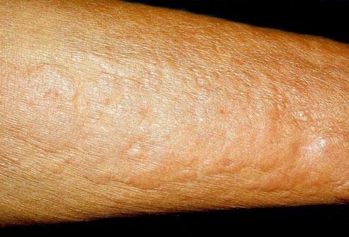 پوست و سلامتی