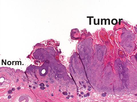 غربالگری سرطان پوست