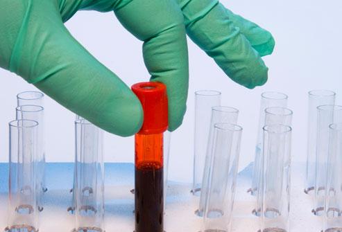 آزمایش سطح ویتامین دی