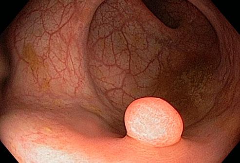 ویتامین دی و سرطان