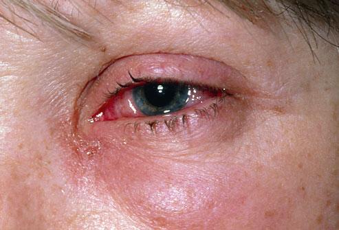 علائم چشم صورتی