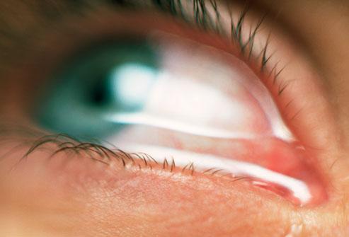 علائم آلرژی چشم