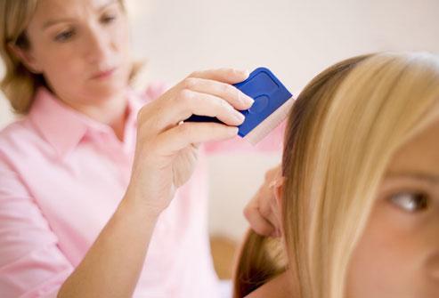 درمانهای خانگی برای شپش سر