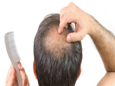 درمان ریزش فصلی مو