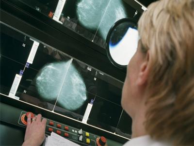 درمان وضعیت سینه فیبروکیستیک