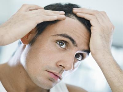درمان ریزش موی فصلی